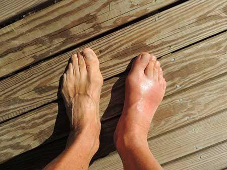 Relax-cream-สมุนไพรช่วยบรรเทาอาการปวดขา-ปวดข้อเท้า